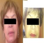 טיפולי בוטוקס בצפון לפני ואחרי מילוי שפתיים
