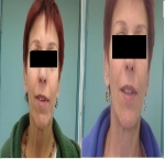 טיפולי בוטוקס בצפון לפני ואחרי מילוי לחיים והזרקת בוטוקס