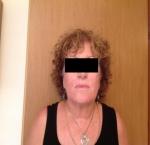 טיפולי בוטוקס בצפון לאחר מילוי קמטים באמצעות חומצה היאלורונית