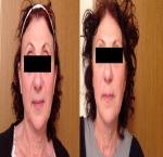 טיפולי בוטוקס בצפון לפני ואחרי מילוי חומצה היאלרונית בפנים