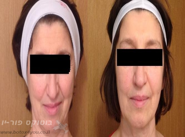 לפני ואחרי מילוי קמטים עי חומצה היאלורונית