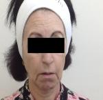 טיפולי בוטוקס בצפון שפתיים סדוקות ולחיים נפולות