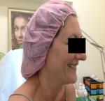 טיפולי בוטוקס בצפון הזרקת חומצה היאלורונית במצח