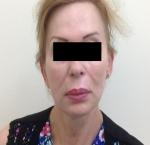 טיפולי בוטוקס בצפון לאחר הזרקת חומצה היאלורונית בשפתיים