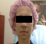 טיפולי בוטוקס בצפון לאחר טיפול בוטוקס במצח