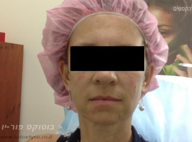 לאחר טיפול בוטוקס בסנטר