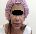 טיפולי בוטוקס בצפון לאחר הזרקת בוטוקס בשפתיים