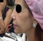 טיפולי בוטוקס בצפון לאחר הזרקת חומצה היאלורונית בשפה התחתונה