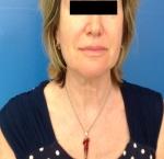 טיפולי בוטוקס בצפון הזרקת חומצה היאלורונית בלחיים