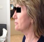 טיפולי בוטוקס בצפון הזרקת חומצה היאלורונית בצידי העיניים