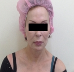 טיפולי בוטוקס בצפון לאחר הזרקת חומצה היאלורונית במצח