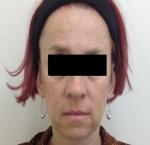 טיפולי בוטוקס בצפון קמטים מתחת לעיניים
