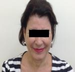 טיפולי בוטוקס בצפון הזרקת חומצה היאלורונית בשפה התחתונה