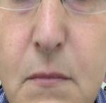 טיפולי בוטוקס בצפון שפתיים דקות