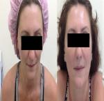 טיפולי בוטוקס בצפון לפני ואחרי הזרקת בוטוקס במצח ובשפתיים