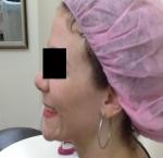 טיפולי בוטוקס בצפון לאחר הזרקת בוטוקס בשפה התחתונה