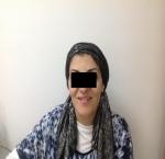 טיפולי בוטוקס בצפון לאחר הזרקת בוטוקס באזור המצח