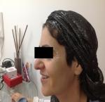 טיפולי בוטוקס בצפון לאחר הזרקת חומצה היאלורונית בלחיים
