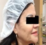 טיפולי בוטוקס בצפון קמטים ליד העיניים