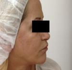 טיפולי בוטוקס בצפון לאחר טיפול בוטוקס בין הגבות