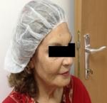 טיפולי בוטוקס בצפון קמטים באזור המצח והלחיים