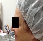 טיפולי בוטוקס בצפון קמטים באזור הלחיים וליד העיניים