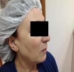 טיפולי בוטוקס בצפון קמטים בצידי העיניים