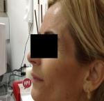 טיפולי בוטוקס בצפון לאחר טיפול בוטוקס באזור הלחיים