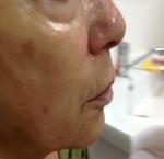 טיפולי בוטוקס בצפון קמטים באזור השפתיים