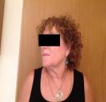 טיפולי בוטוקס בצפון מילוי  קמטים בצידי העיניים